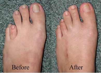 short toe lengthening procedure