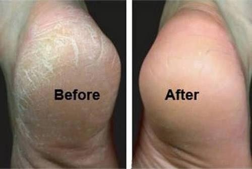 Podiatrist In Roseburg Xerosis Dry Skin In Roseburg